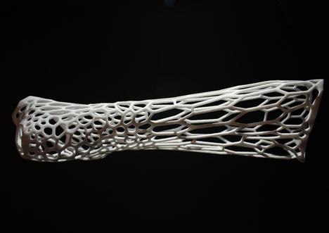 dezeen_Cortex-3D-printed-cast-for-broken-bones-by-Jake-Evill-3